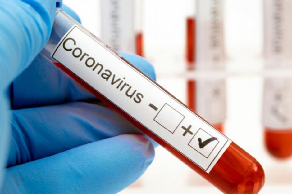 Przy Pasażu Tesco w Poznaniu można wykonać test na obecność koronawirusa