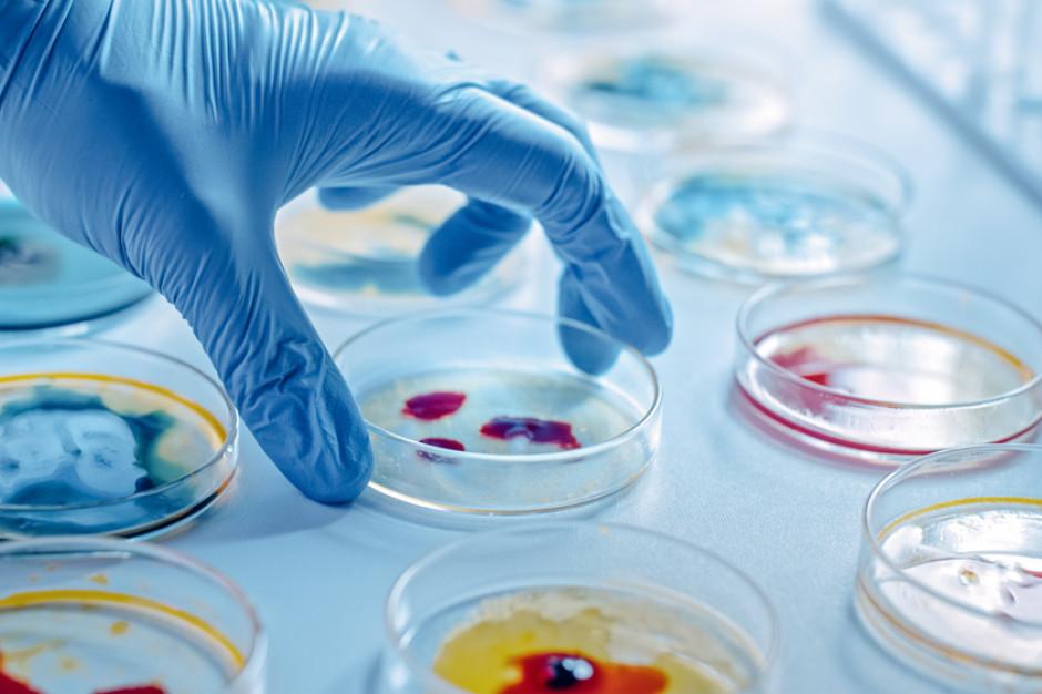 Naukowcy z UPWr chcą wyhodować drożdże zjadające plastik